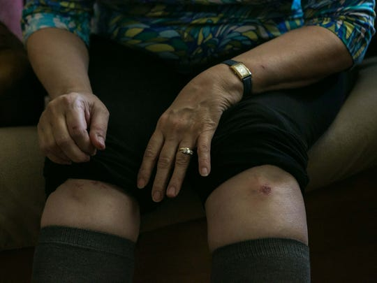 Diane White of Wilmington shows her injuries from trying to protect her dogs, Stella and Darcy, from a pit bull attack. Darcy was killed.
