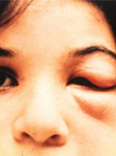 Swelling of an eyelid is a common symptom of the kissing bug bite. But many victims show no signs whatsoever.