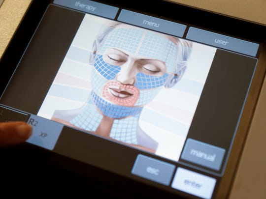 The screen of the Exilis Ultra at Dr. Stella Noel's office in Lafayette Oct. 17, 2016.