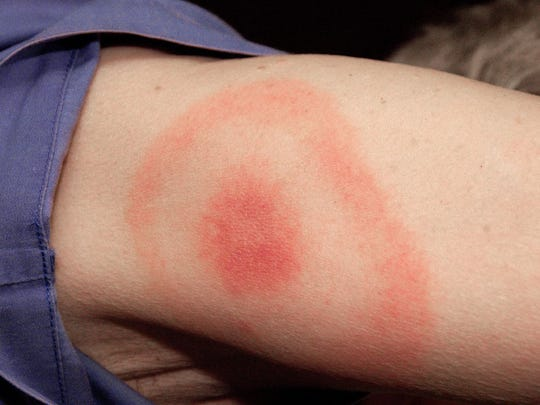 A bullseye rash surrounding a tick bite is a telltale