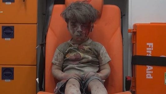 Omran Daqneesh is a 5-year-old boy who was seriously injured in a recent airstrike in Syria.