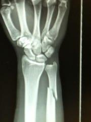 Justin Cardella broke his right wrist in a fight on