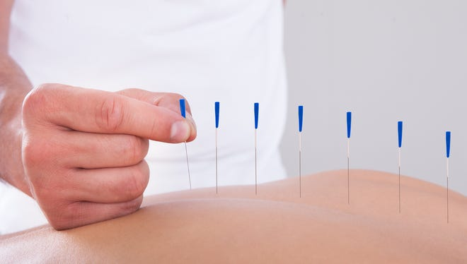 Woman receiving acupuncture therapy