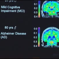 Report shows many alzheimer's patients not told of diagnosis