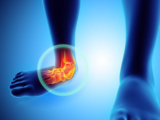 Ankles are also susceptible to arthritis.