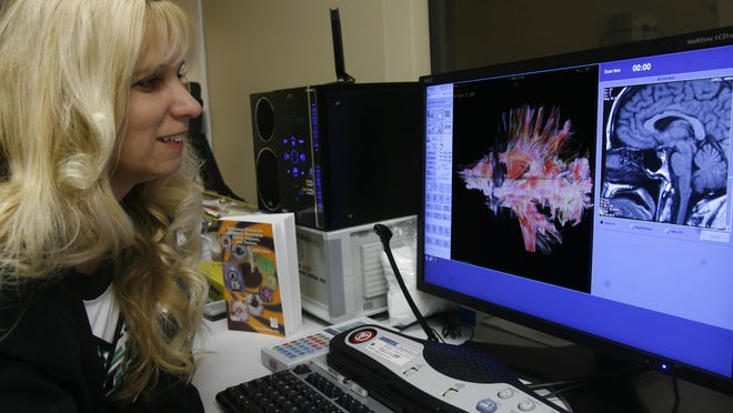 Lori McGehee-Sullivan, manager of technical services at the Cancer Center at Desert Regional Medical Center in Palm Springs, displays images of the brain from the Signa HDxt 3.0T MR system.