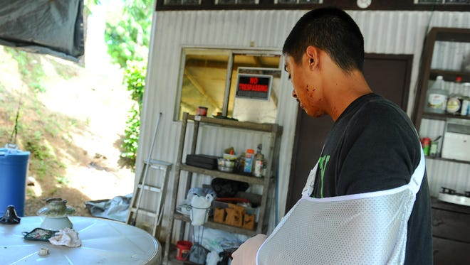 "Laddie Aguigui, 25, is photographed in front his Agat home where he was injured by an explosion in June 2014. Aguigui lost three fingers on his left hand, and suffered and sustained lacerations to his face and neck after a homemade explosive device he was ""experimenting"" with unexpectedly detonated."