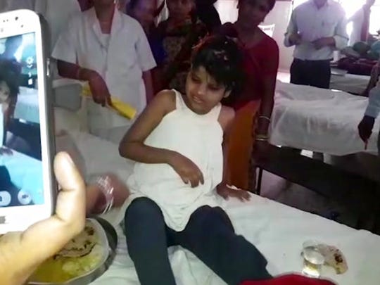 A young Indian girl  sits on a bed in a hospital in this image taken from video in Bahraich northern India Thursday April 6, 2017. Indian police are reviewing reports of missing children from recent years to try to identify the girl who was found in a forest with a group of monkeys. The girl, believed to be about 10 to 12 years old, was unable to speak, was wearing no clothes and was emaciated when she discovered in January and taken to a hospital in Bahraich.