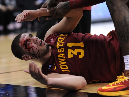 Mar 14, 2014; Kansas City, MO, USA; Iowa State Cyclones forward Georges Niang (31) is injured during the second half against the Kansas Jayhawks in the semifinals of the Big 12 Conference college basketball tournament at Sprint Center. Iowa State won 94-83. Mandatory Credit: Denny Medley-USA TODAY Sports