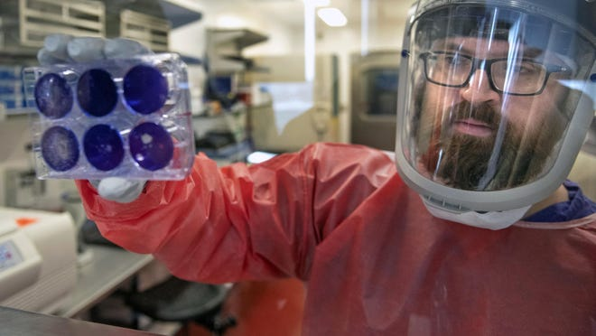Matt Dunn, a researcher for the Center for Vaccine Research at the University of Pittsburgh, holds dead samples of the coronavirus Thursday, Feb. 27, 2020, at the Biomedical Science Tower 3 in Oakland.