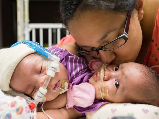 The identical conjoined twin girls were born at Texas Children's Pavilion for Women, estimated to weigh 3 pounds, 7 ounces each.