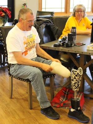 Dave Dunville, a former firefighter whose leg was amputated in 2003, received a new prosthetic ankle Thursday, which will give him more mobility.