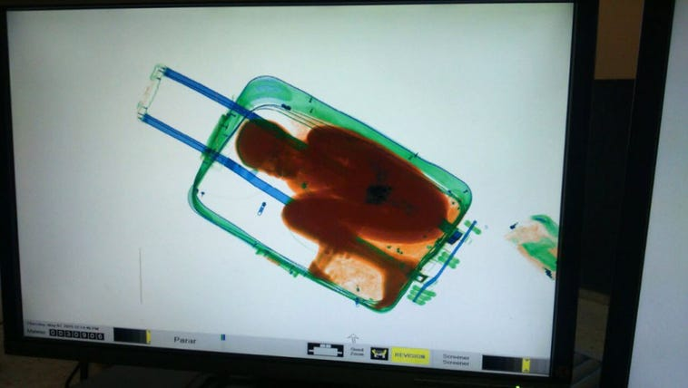 X-ray images of Adou inside a suitcase.