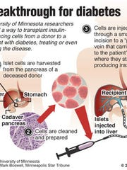Cell transplant procedure shows promise for reversing diabetes