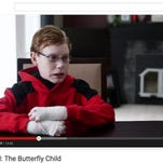 Jonathan Pitre has a rare skin disease that causes him to blister during everyday activities like eating, drinking and bathing.