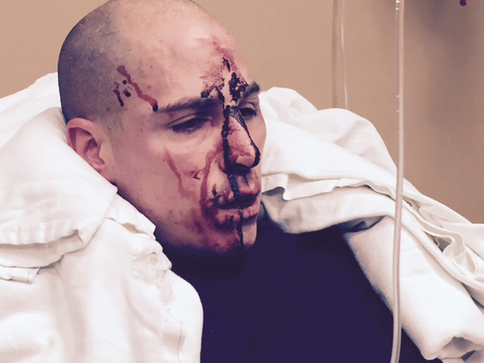The Eaton County Prosecutor's Office released this photo officials say shows Sgt. Jonathan Frost's injuries after the fatal shooting of Deven Guilford.