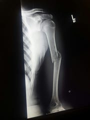 X-Ray of the broken arm Mason Evans suffered at the 2016 MHSAA Individual Finals.