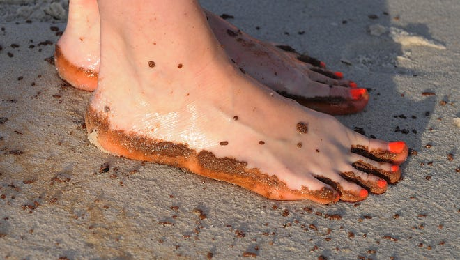 Rebecca Thomasson of Knoxville, Tenn., has oil on her feet while walking along the beach as oil from the Deepwater Horizon spill washes up on the beach in Gulf Shores, Ala., Friday, June 4, 2010.