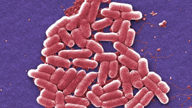 This 2006 colorized scanning electron micrograph image made available by the Centers for Disease Control and Prevention shows the O157:H7 strain of the E. coli bacteria.