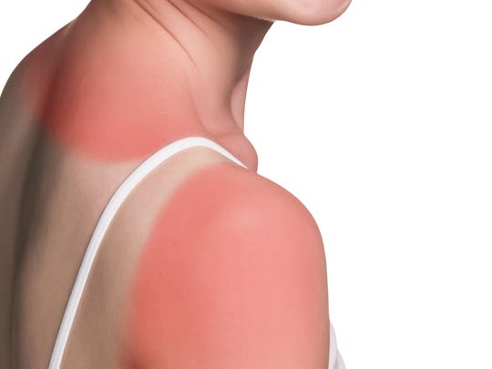 Sunburn female shoulder