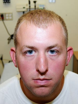 This undated photo released by the St. Louis County Prosecuting Attorney's office on Nov. 24 shows Ferguson police officer Darren Wilson during his medical examination after he fatally shot Michael Brown on Aug. 9 in Ferguson, Mo. According to a medical record released as part of the evidence presented to the grand jury that declined to indict Wilson in the fatal shooting, doctors diagnosed Wilson with a facial contusion.