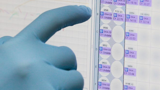 A medical researcher uses a monitor that shows the results of blood tests for various diseases, including Zika, at the Gorgas Memorial laboratory in Panama City.