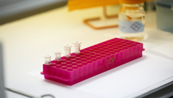 DNA evidence from a sample sexual assault forensic evidence kit awaits testing.