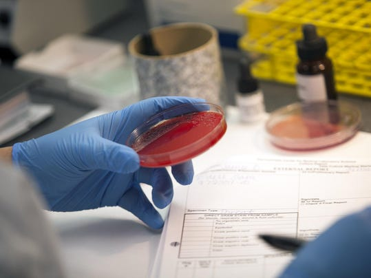 aqa gce biology coursework