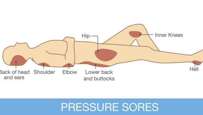 Pressure sores area can occur on several different parts of your body.