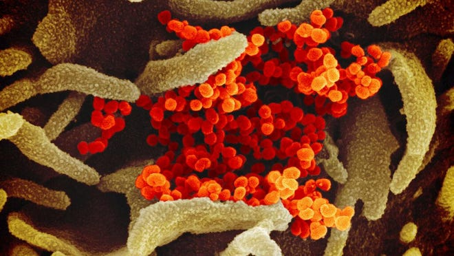 NIAID Follow Novel Coronavirus SARS-CoV-2  This scanning electron microscope image shows SARS-CoV-2 (orange)--also known as 2019-nCoV, the virus that causes COVID-19--isolated from a patient in the U.S., emerging from the surface of cells (green) cultured in the lab. Credit: NIAID-RML
