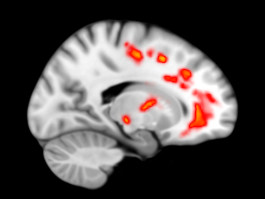 Image showing areas of damaged wiring in the brain
