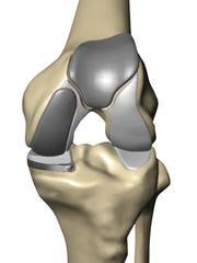 Mako technology creates a 3D virtual model of a patient's