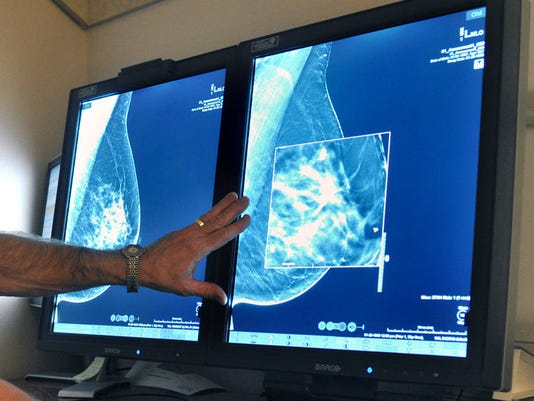 AP MAMMOGRAM GUIDELINES A FILE USA TX