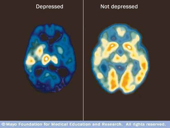 Presenters often use images like these PET scans, showing