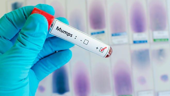 Mumps positive