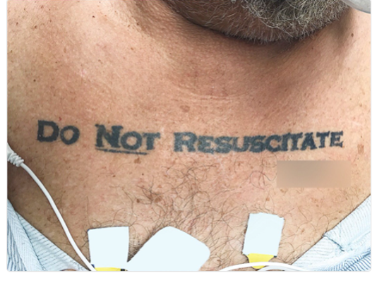 Man's 'Do Not Resuscitate' tattoo causes ethical dilemma for
