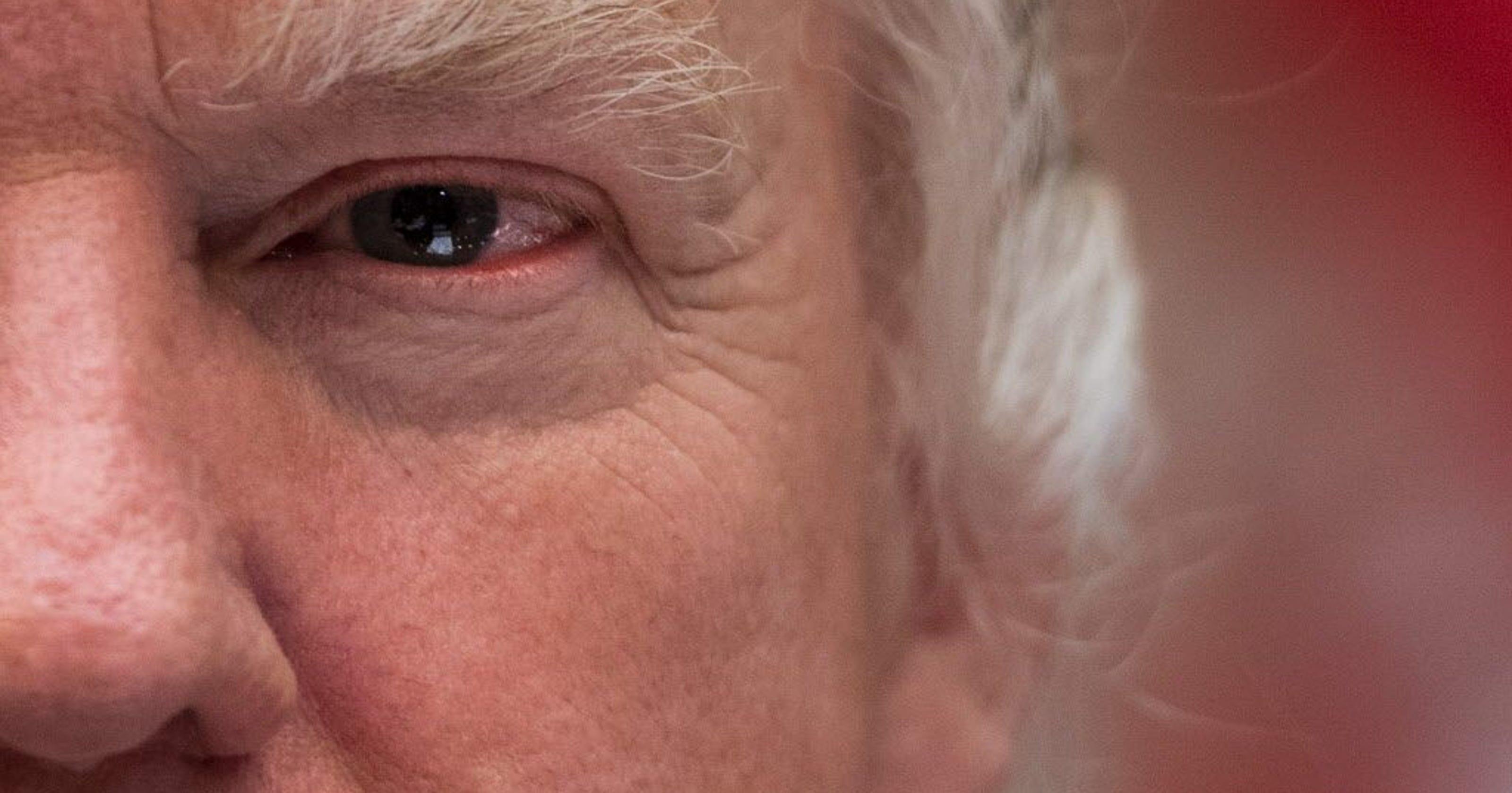 Donald Trump's malignant narcissism is toxic: Psychologist