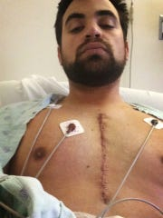 Marcus Calverley had surgery to remove a tumor in his chest. Doctors determined in August 2014 that the growth was cancerous.