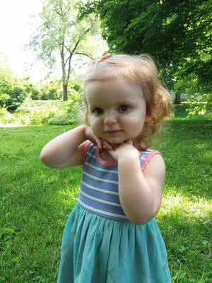Nora Hosier, two, was born with metastatic melanoma.