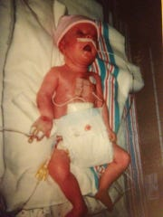 Emily Gober had her first heart surgery at 2 months