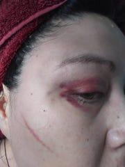 Ellie Roubideaux, 40, of Yankton, filed a complaint