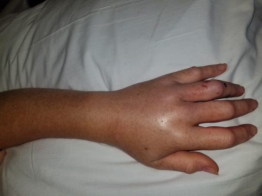 Doctors monitored the swelling in Kimberly Sanford's left hand after she was bitten by a copperhead.