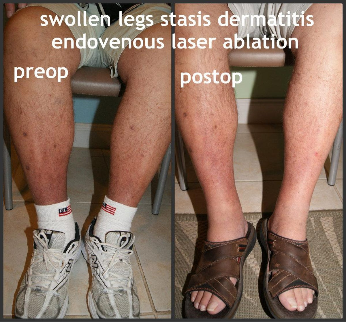 Wound won't heal? Could be venous insufficiency