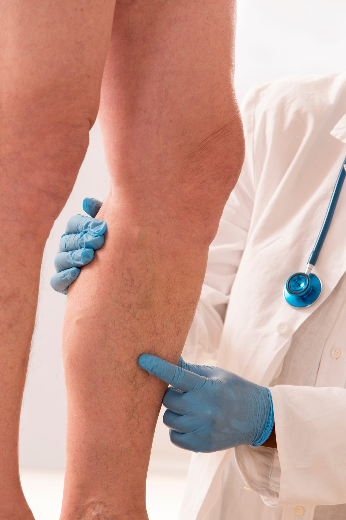 Achy, heavy legs? Could be leaking veins