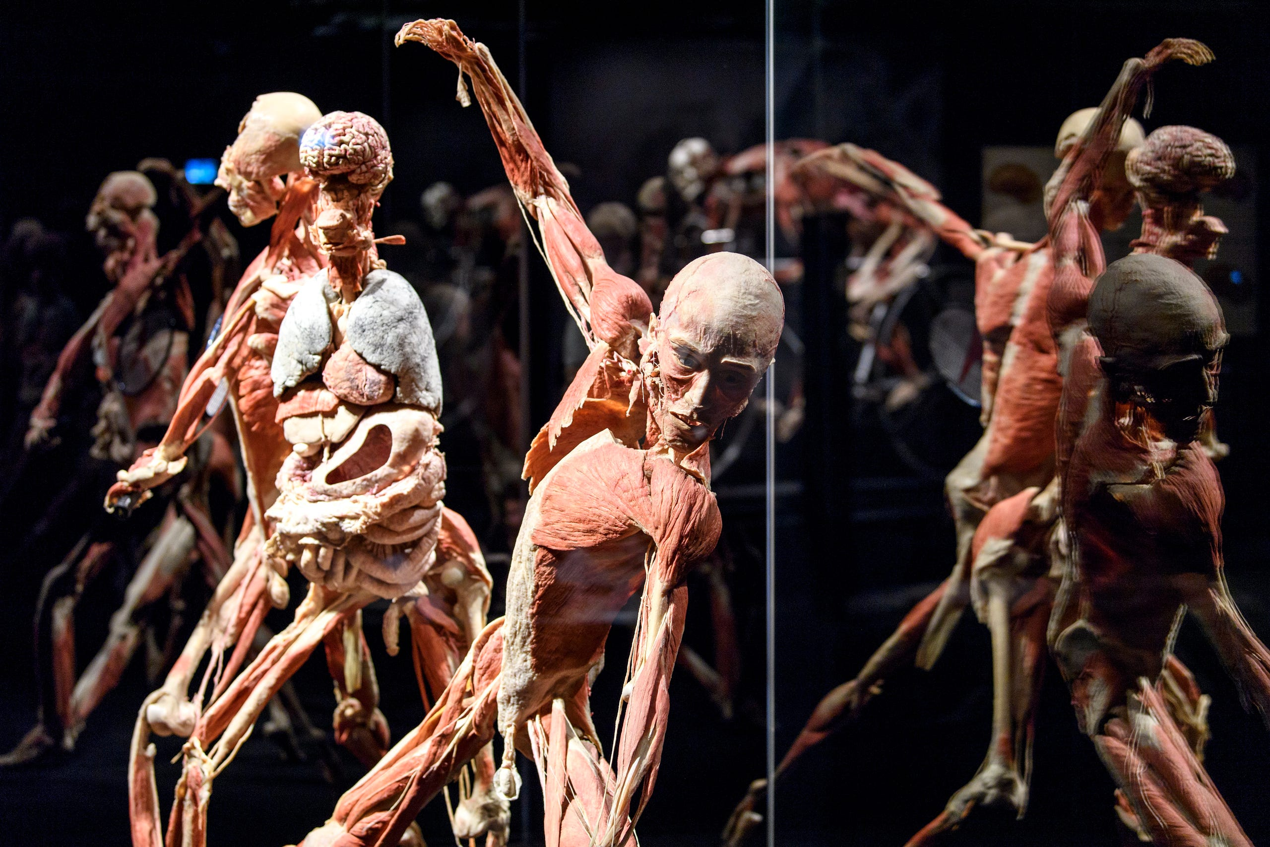 The Amazing Body Worlds And The Cycle Of Life Exhibition