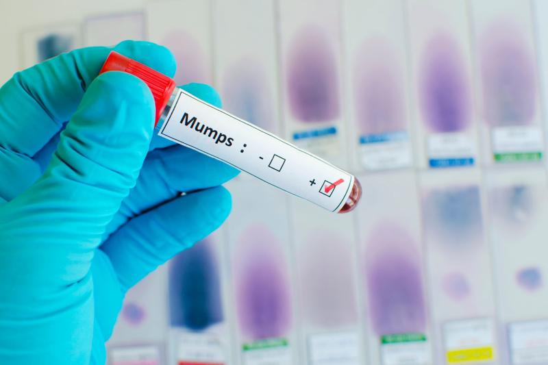 Mumps continues to spread in Delaware with record number of cases   Delaware Online