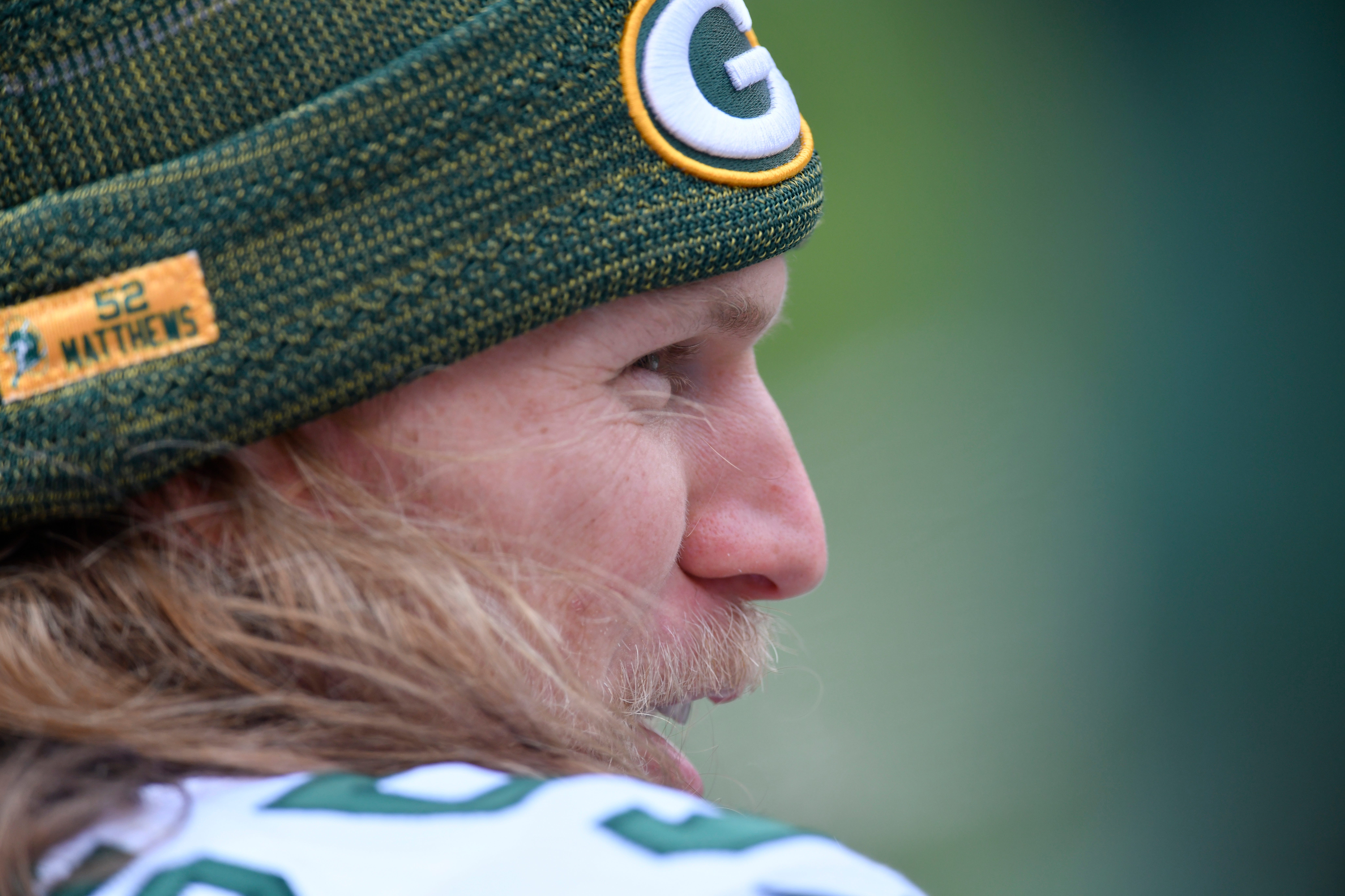 Packers says no long-term concern after Matthews hit on nose