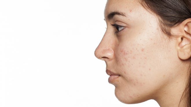 Acne affects 50 million Americans annually and can occur at any stage of life, according to the American Academy of Dermatology.