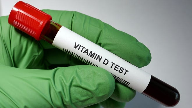 Physicians will evaluate vitamin D if the PTH is elevated, and if the D is low, they will tell you to supplement.