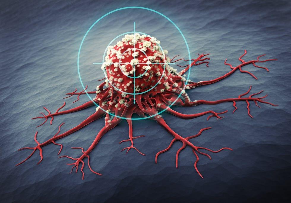 Vedere microscopică a unei celule canceroase.